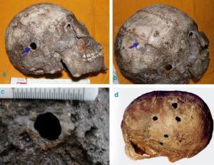 Brain Surgery in Harappa