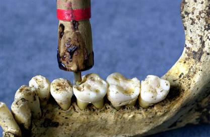 Image result for ancient dentistry in india