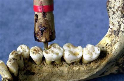 Dental drilling Vedic India.image.